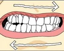 Bruxismo Infantil: Quando as Crianças Rangem os Dentes
