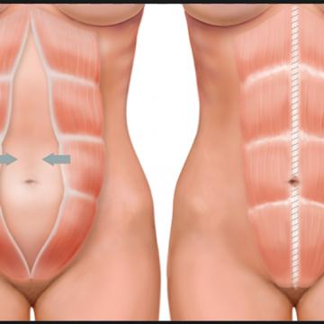 Diástase pós gravidez: exercícios para deixar a barriga reta após o parto
