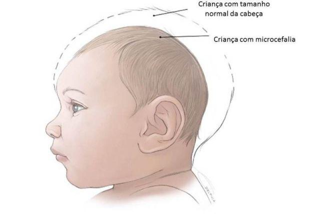 Imagem: Tua Saúde